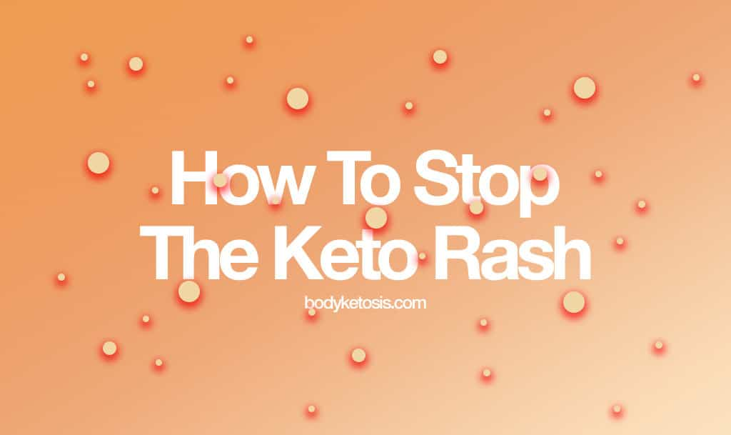 how to stop the annoying keto rash  everything you need to