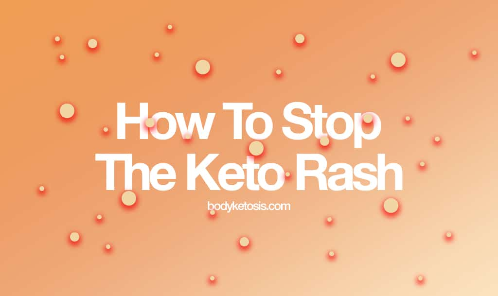 How To Stop The Annoying Keto Rash (Everything You Need To Know)