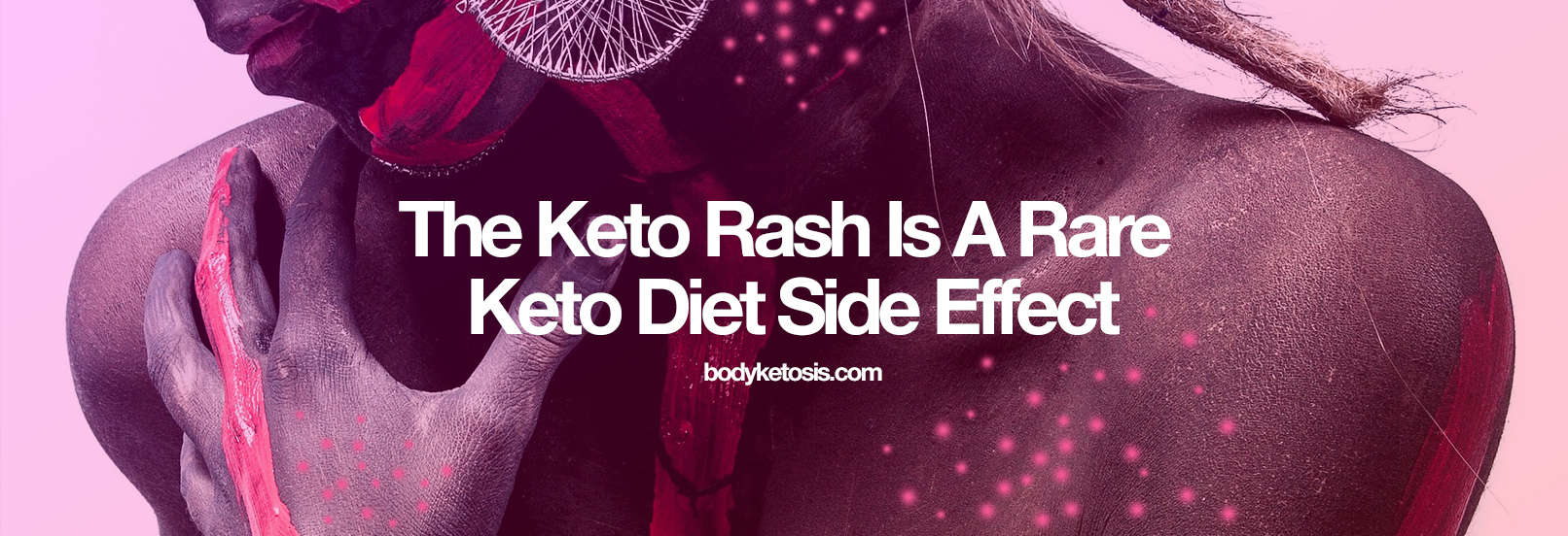 How to STOP the Annoying Keto RASH (Everything You Need To Know